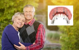 Entenda Definitivamente a Diferença Entre Prótese e Implante Dentário
