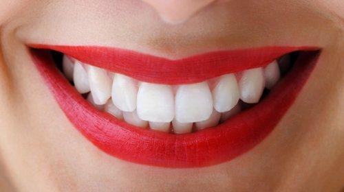 Clareamento Dental O Que Voce Precisa Saber Antes Durante E Depois